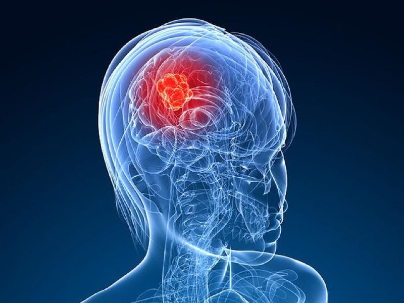 Καρκίνος στο κεφάλι: Κοινά συμπτώματα που δεν πρέπει να αγνοείτε