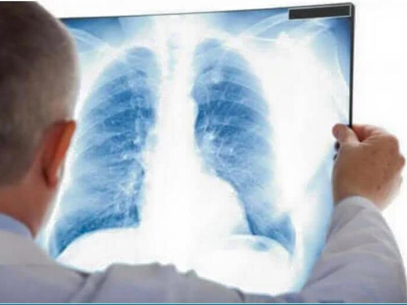 Γράμμα ενός πνευμονολόγου: Ρε μπαγάσες, εσείς το τερματίσατε ρε φίλε…